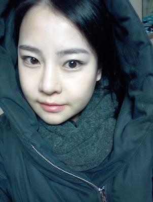 1 bulan sesudah korea face contouring surgery di Wonjin Plastic Surgery