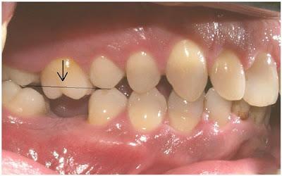 trồng răng cấm bằng phương pháp cấy ghép Implant -3