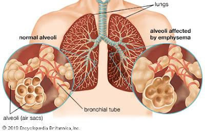 Obat Tbc Herbal