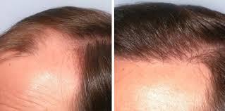 saç ekimi öncesi ve sonrası foto 19