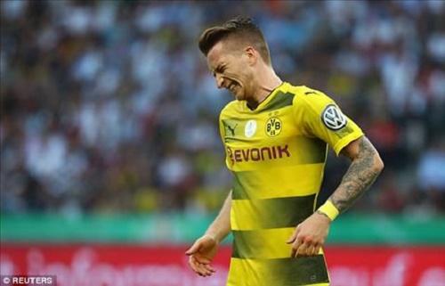 Cơ hội thi đấu cho đội tuyển Đức tham dự EURO 2016 của Reus mong manh