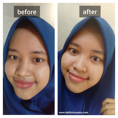 Review produk N'PURE Cica Clear Pad
