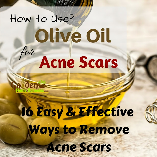 Olive Oil For Acne Scars, Olive Oil Acne Scars, Olive Oil And Acne Scars, Is Olive Oil Good For Acne Scars, How To Use Olive Oil For Acne Scars, How To Get Rid Of Acne Scars, How To Get Rid Of Acne Scars Fast,