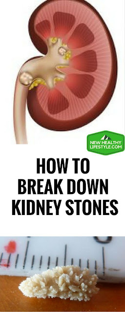 HOW TO BREAK DOWN KIDNEY STONES AND KILL BLADDER INFECTION WITH THIS ONE-INGREDIENT JUICE