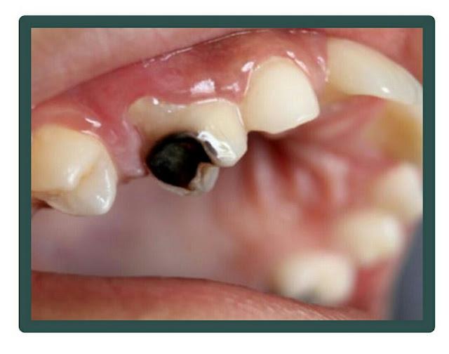 Mengatasi Sakit Gigi Berlubang dengan Obat Alami