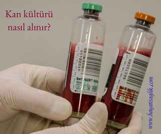 kan kültürü şişeleri