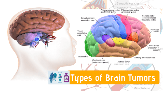 Types of Brain Tumors