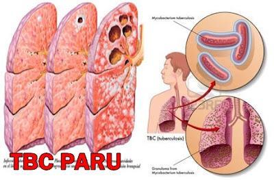 Cara Menyembuhkan TBC Paru Dengan Daun Sirsak