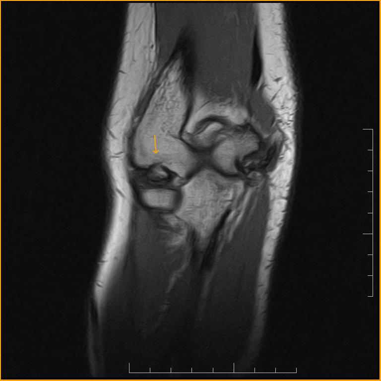 Osteochondritis of the Elbow-MRI - Sumer's Radiology Blog