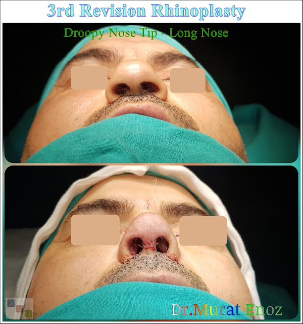 3rd Revision Rhinoplasty - Droopy Nose Tip - Tertiary Nose Job For Men
