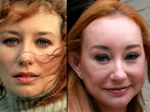 Tori Amos Plastic Surgery Before And After Nose Job And Botox
