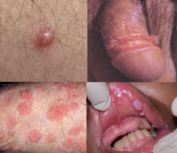 Penis Virus 97