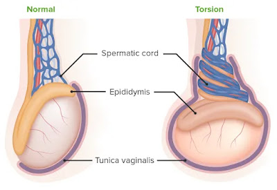 testicular torsion treatment causes