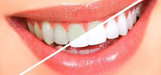 http://www.ultimatecosmeticdentalcenter.com/Teeth_Whitening.html