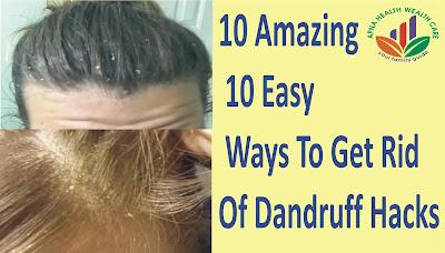 10 easy ways to get rid of dandruff, split hair, white hair