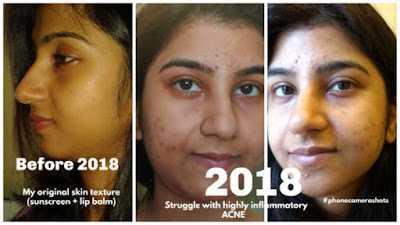 my acne scar clearing journey with aroma essentials vitamin c night serum