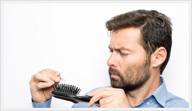 Cara Ampuh Mengatasi Rambut Rontok Parah Secara Alami