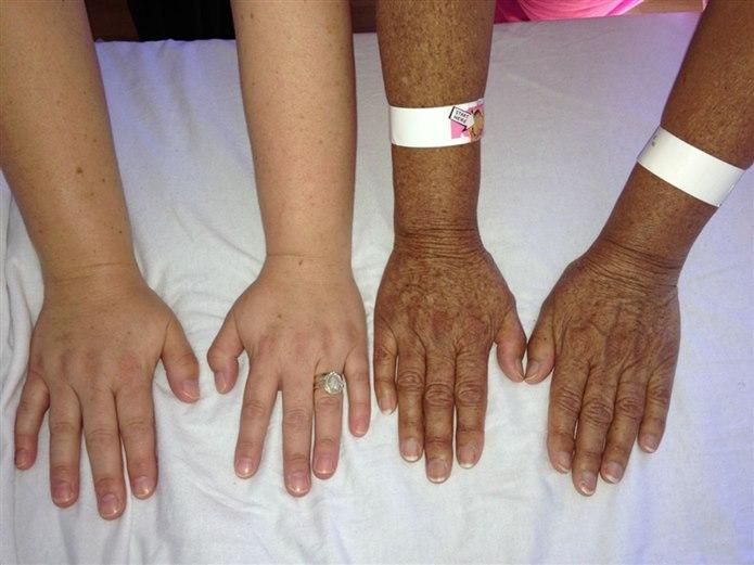 Addison Hastalığı Sebepleri ve Tedavisi
