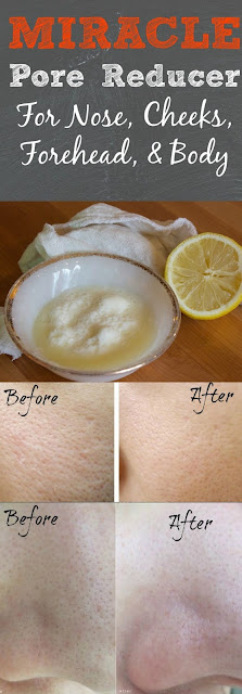 DIY PORE REDUCER FOR LARGE, STUBBORN PORES
