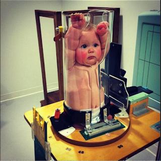 寶寶胸部 x 光