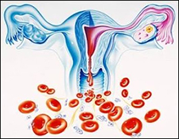 Menorrhagia, Heavy Menstrual Bleeding