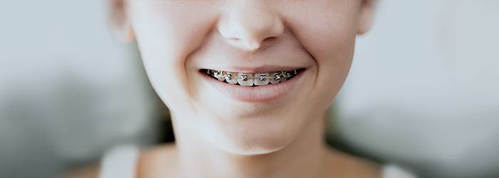 c2774967dd5 Braces can correct misaligned teeth to improve your smile and your dental  health, but braces pain can make you uncomfortable.