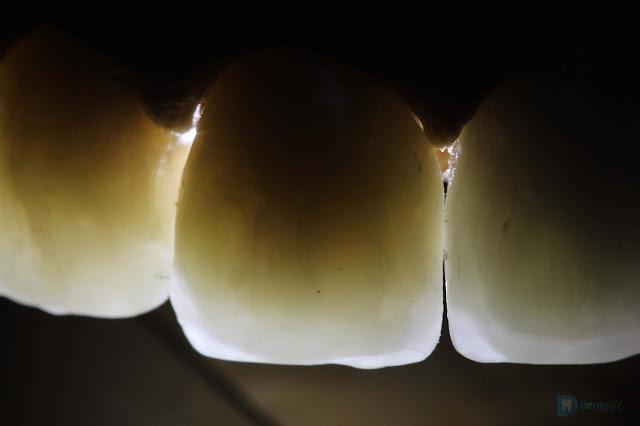 Encerado diagnostico realizado en Consultorio Dentalife en Veracruz