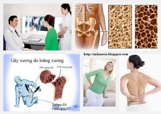 Symptoms of osteoporosis and osteoporosis treatments | Search Box