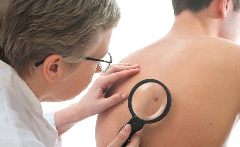 Signs of Skin Cancer