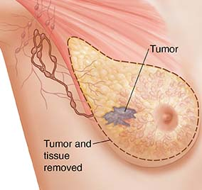 Another news representative informed that according to the study carried in Sweden in the year 2010 on around 35000 women observed that the danger of breast cancer was risen up by the use of multivitamins.
