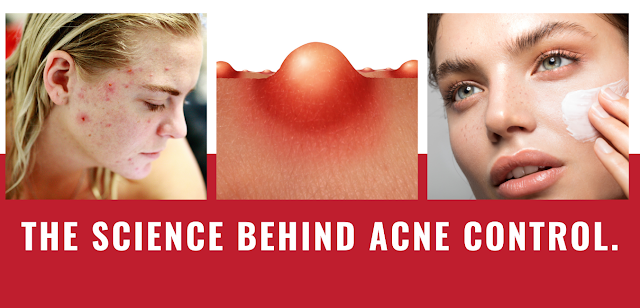 The science behind acne control.