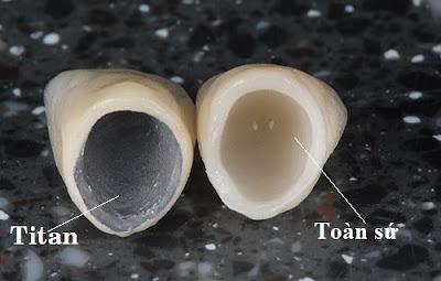 những điều nên biết về trồng răng sứ titan -12