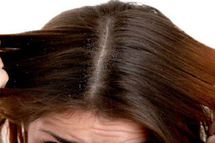 Benarkah Pertanda Rezeki? Ini Arti Mimpi Kutu Rambut Menurut Psikolog dan Primbon Jawa