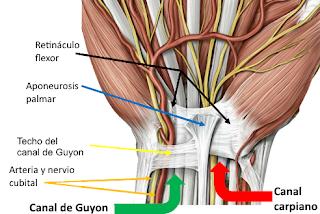 Sindrome del canal de Guyon