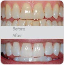 borsta tänderna med bikarbonat