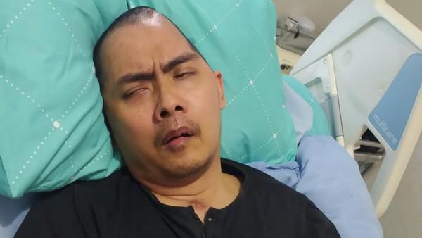 Istri Bersyukur Pengobatan Eks Kasat Reskrim Wonogiri Ditanggung Polri