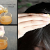Head Lice and Dandruff: Step By Step To Remove Head Lice And Dandruff Using Apple Cider Vinegar