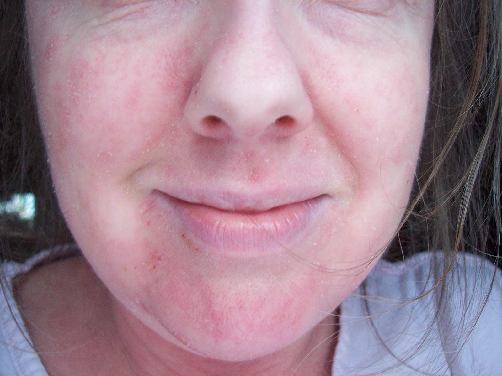 Herpes Face Rash My fa...