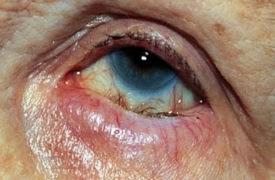 трахома глаз фото