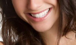 How to Deal With Your Discolored Teeth |