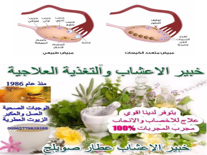 علاج العقم بالاعشاب الطبية خبير الاعشاب والتغذية العلاجية اكياس المبيض