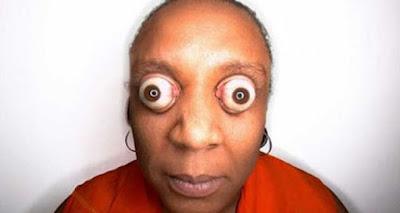 ojos más saltones del mundo, Kim Goodman