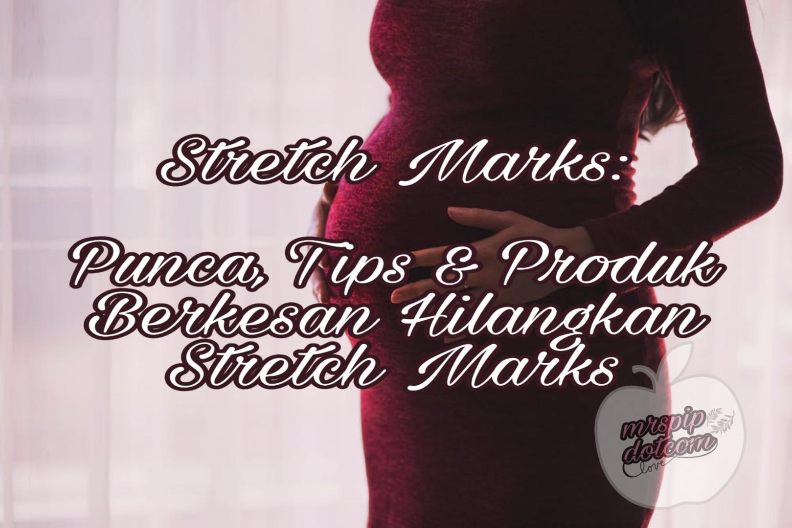tips hilangkan stretch marks selepas bersalin dengan berkesan