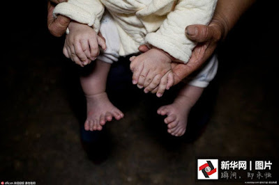 Di China Seorang Bayi Terlahir Dengan Jari Tangan 15 Dan 16 Jari Kaki. Subhanallah