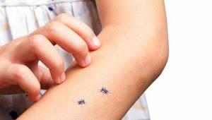 Cara Efektif untuk Hilangkan Rasa Gatal Karena Gigitan Nyamuk