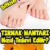Ayak Tırnak Mantarı Nasıl Tedavi Edilir