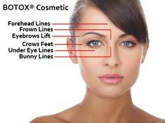Botox Injection Edmonton