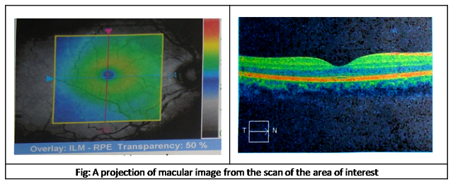 A projection of Macular image from the scan of the area of interest