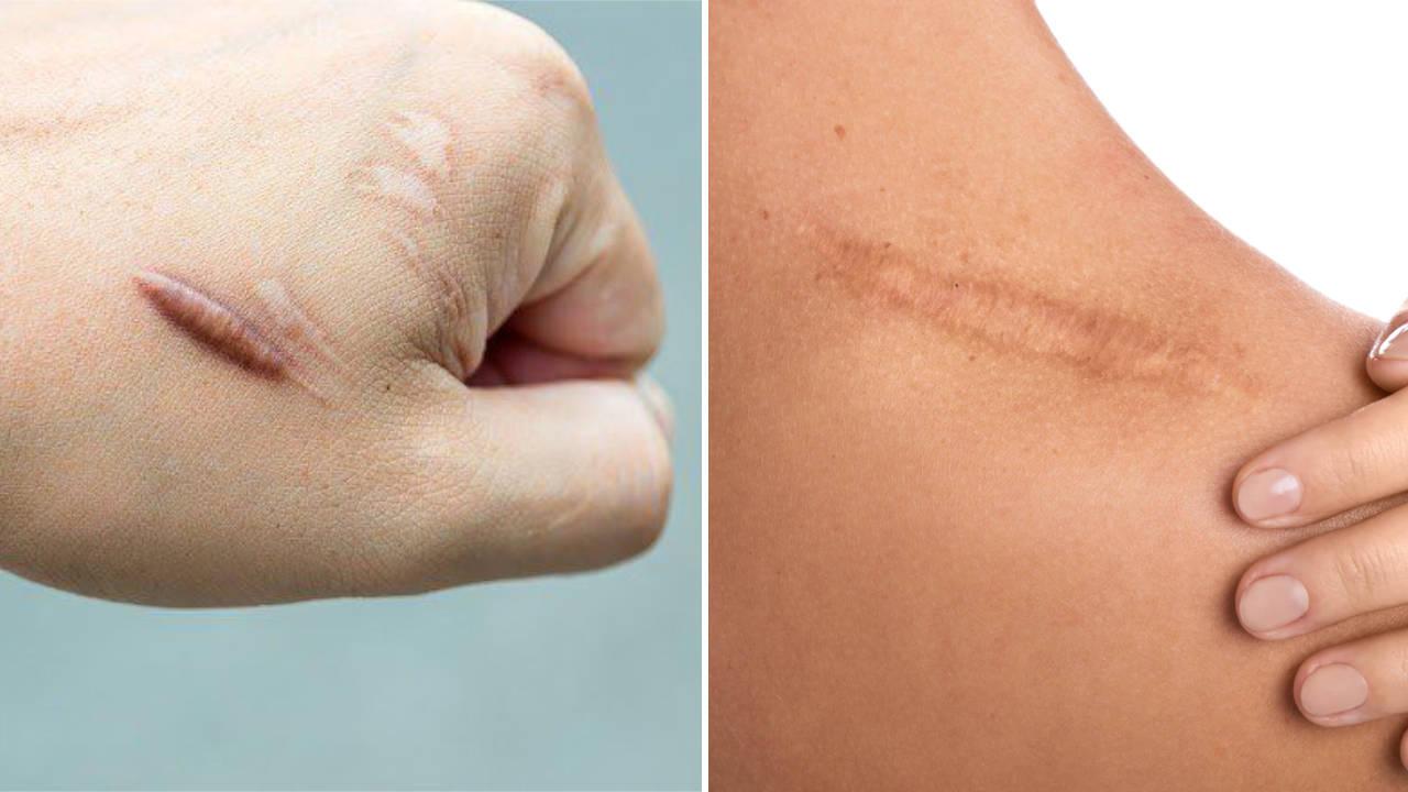 cara hilangkan kesan parut (keloid scars)