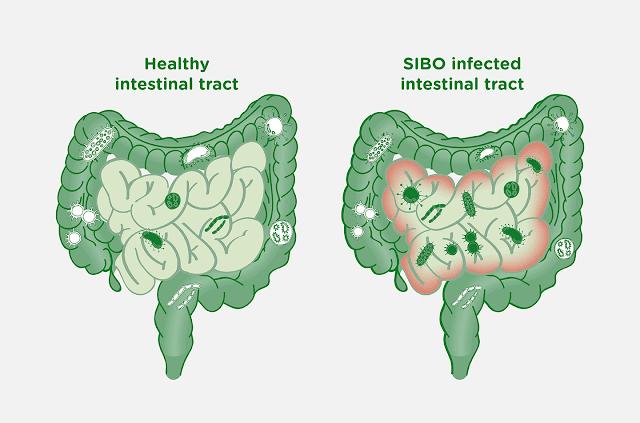SIBO: Symptoms, Causes, Treatment and More -MergeZone
